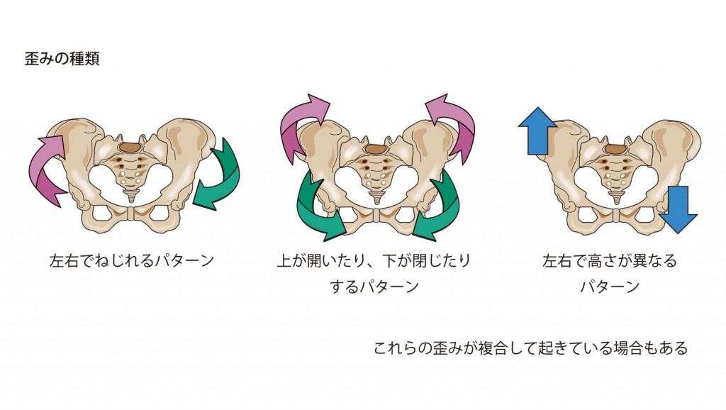 骨盤歪みの種類