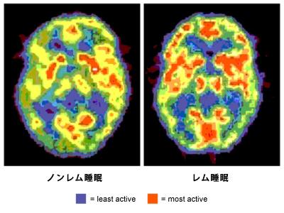 睡眠時の脳波測定写真
