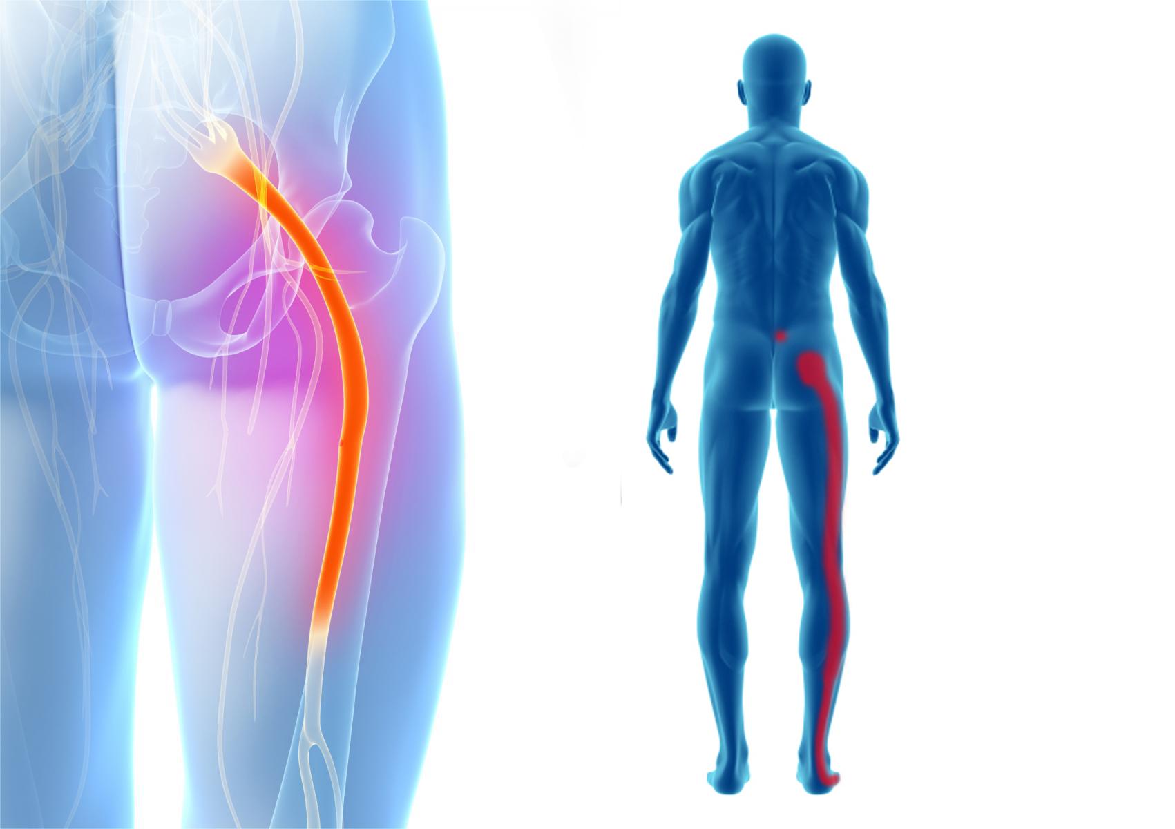 sciatica-stretches