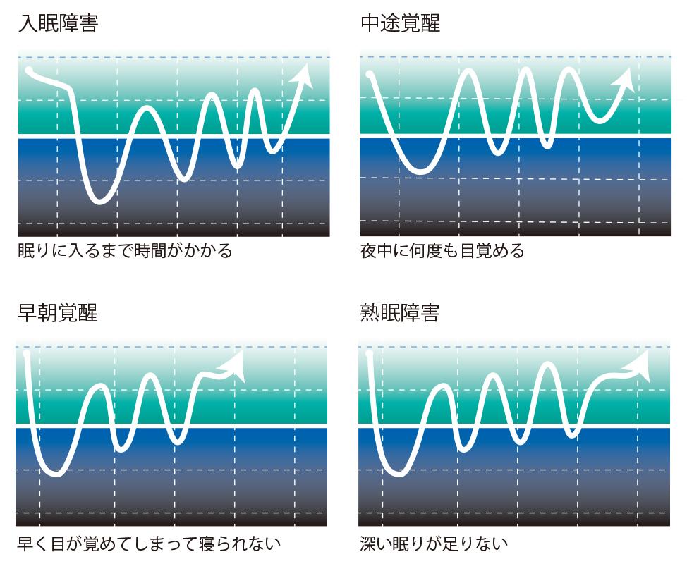 睡眠障害のパターン