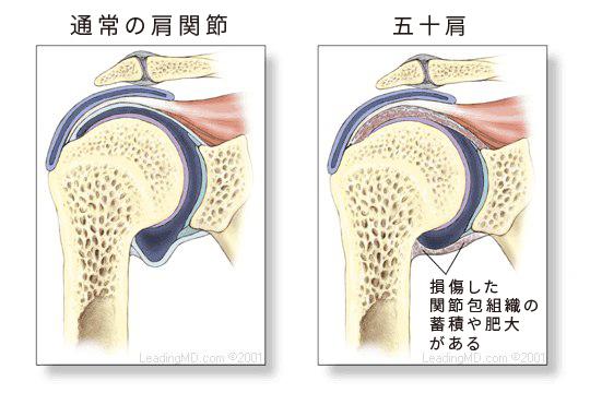肩関節内部