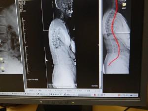 背骨のレントゲン撮影