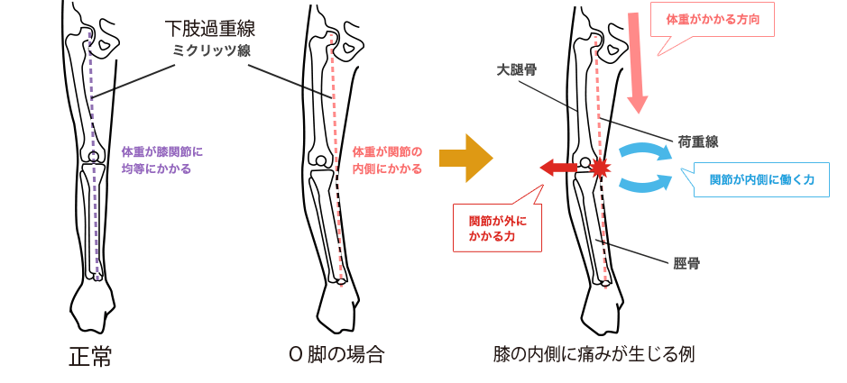 下肢荷重線