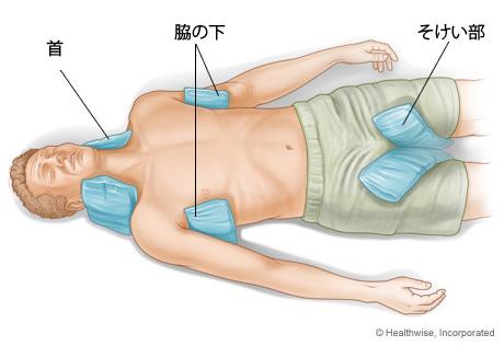 熱中症のケア2