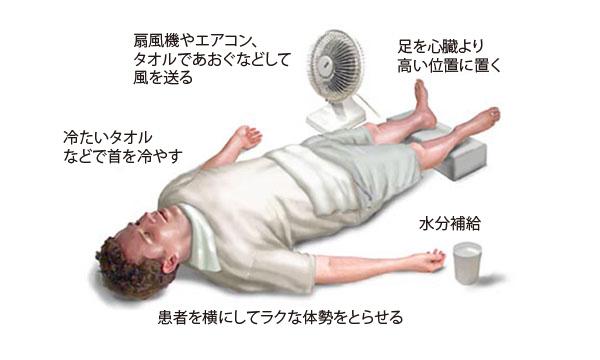熱中症のケア
