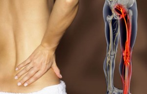 SCIATIC-nerve-pain
