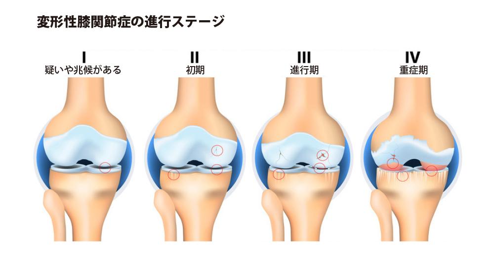 変形性膝関節症の進行ステージ