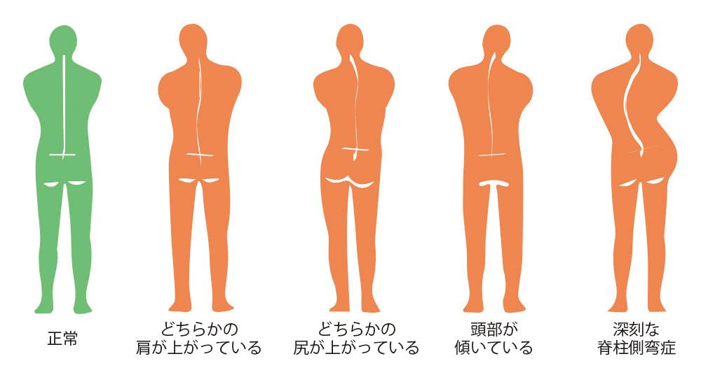 5つの姿勢
