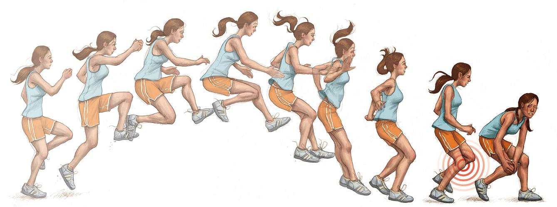 お尻の筋肉をうまく使えていなかったり、硬い足首や着地時の膝の位置などで引き起こされます
