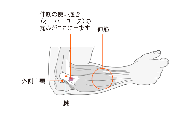tennis-elbow1