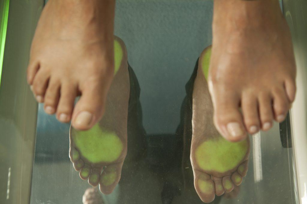 A pair of feet at a podiatrist checkup