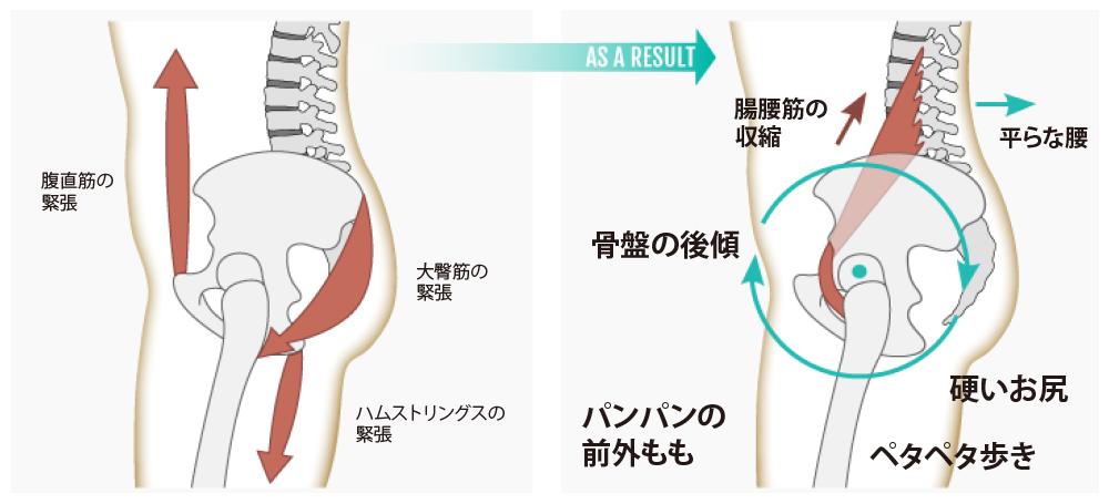 「腰痛 ストレッチ」の画像検索結果