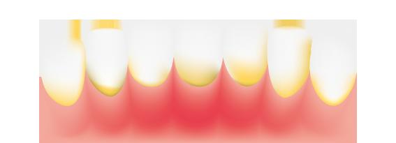 teeth-plaque