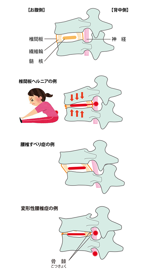 low-back-pain-causes