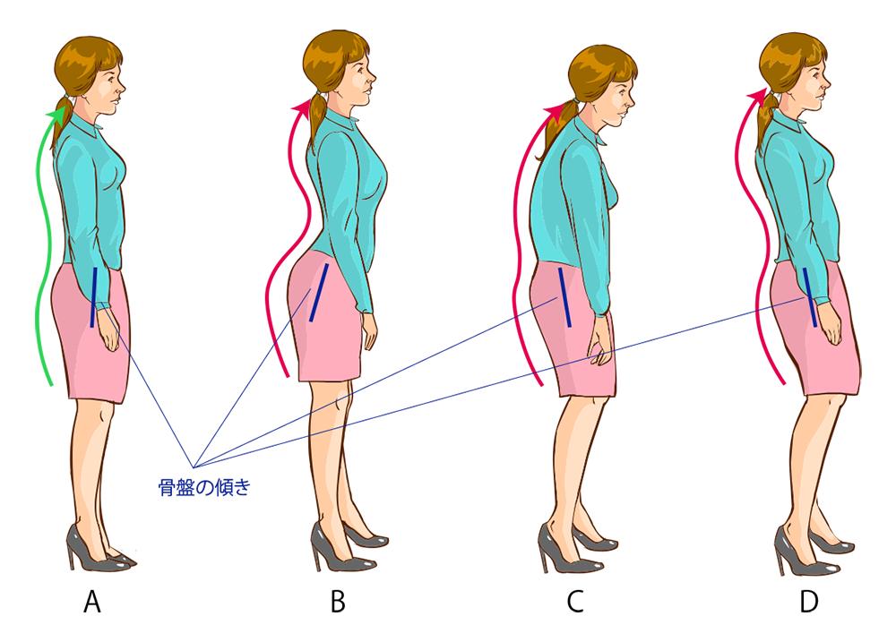 stooping-posture-pattern