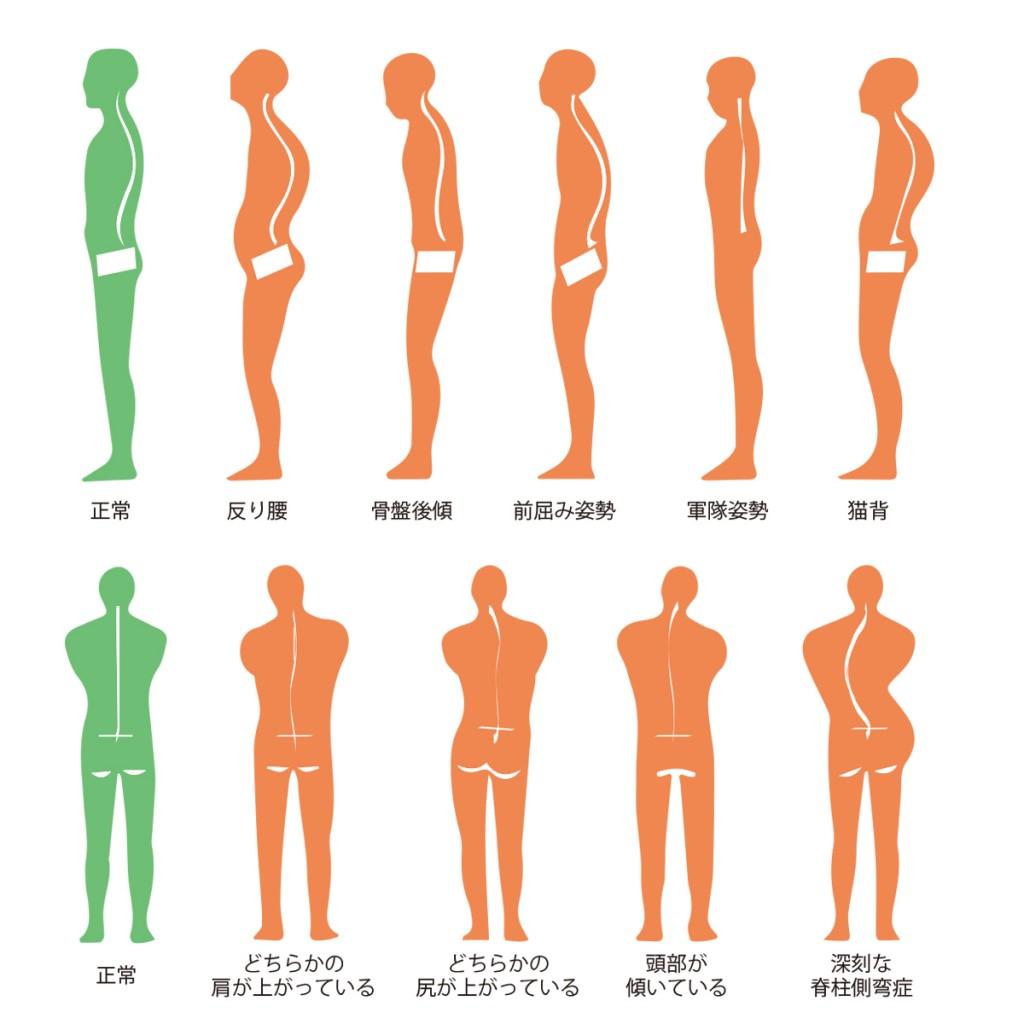 姿勢のパターン