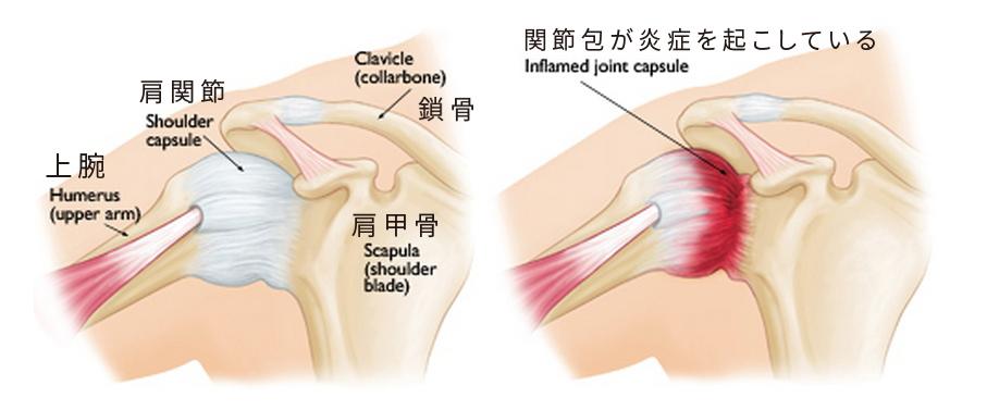 肩関節周囲炎