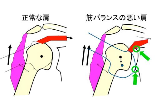 肩のインナーマッスル