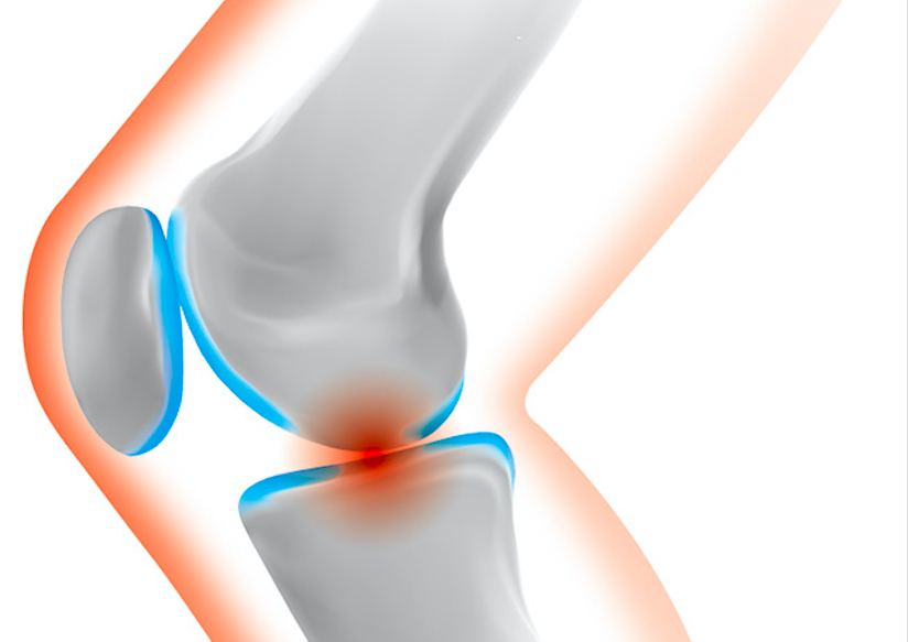pain-in-the-knee