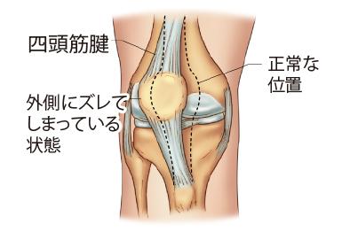 膝蓋骨不安定症