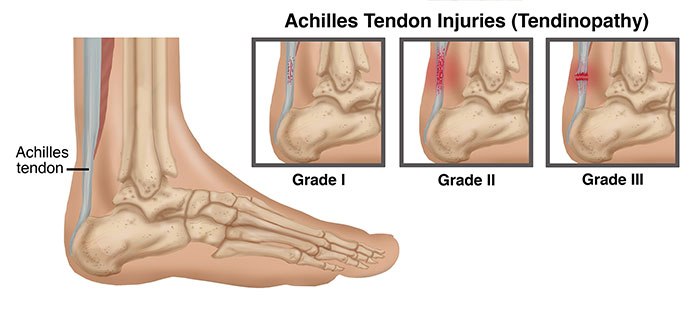 AchilleTendon-Injury-LG