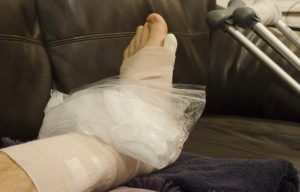 Icing Broken, Fractured or Sprained Foot or Ankle in Cast