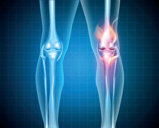 Burning knee, painful knee and normal knee joint, abstract design.