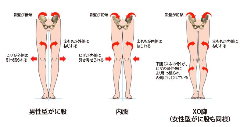 bow-legs1