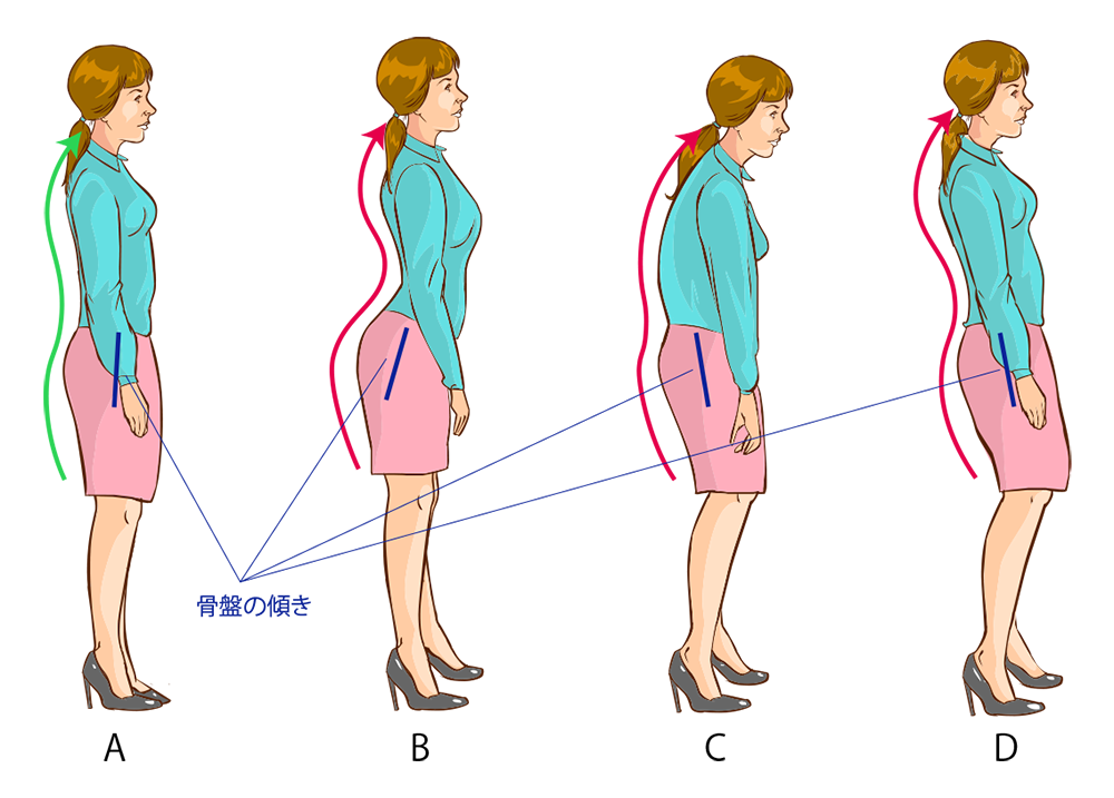 stooping-posture-pattern