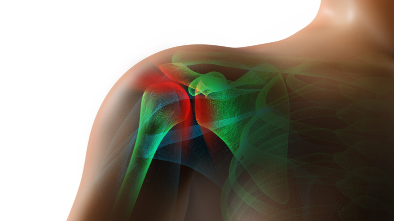Shoulder Pain Injury