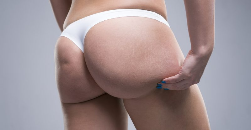 Woman holding fold of skin, cellulite on female body