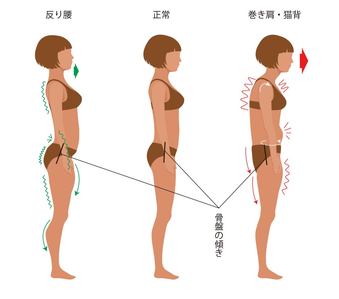 posture-3type