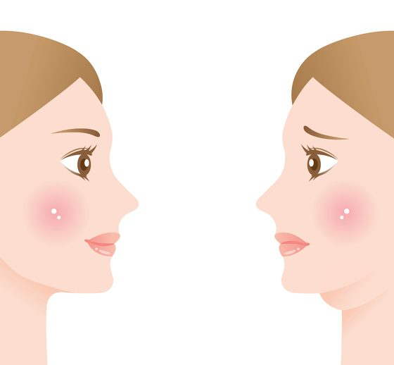 woman with double chin and beautiful slim chin. before and after