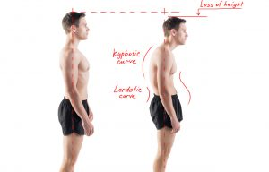 Man with impaired posture position defect scoliosis and ideal bearing