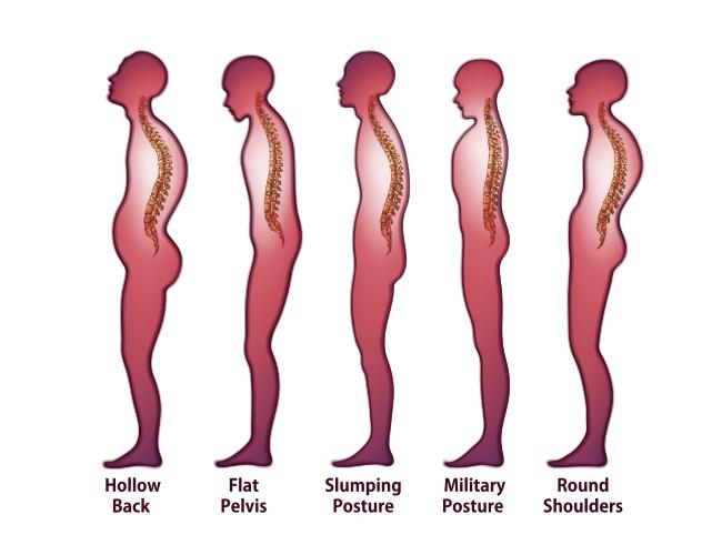 incorrect-postures